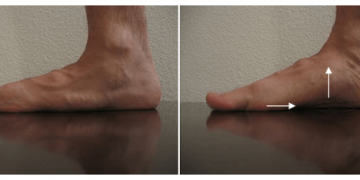 Nekaj splošnega o ploskemu stopalu